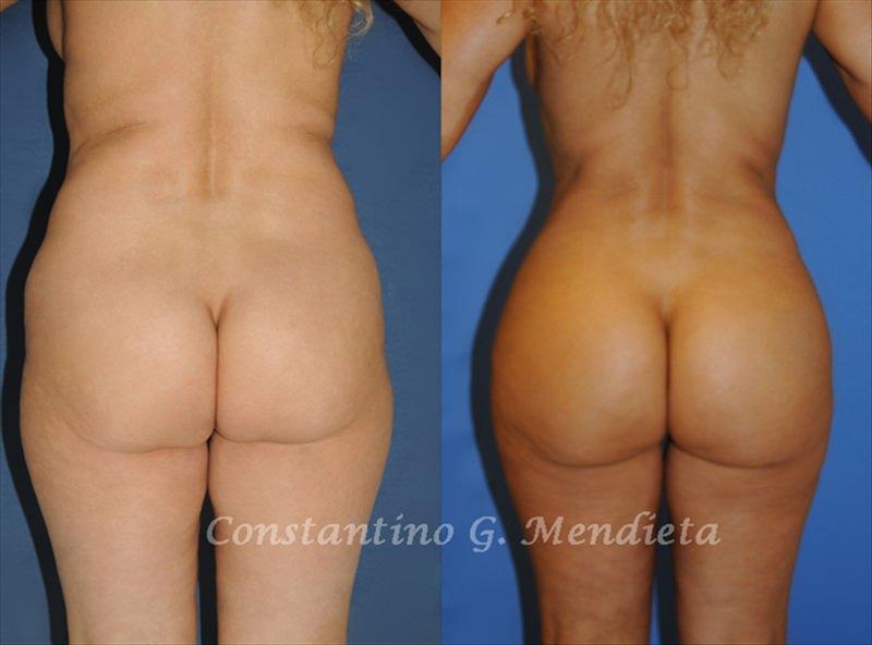 Prije i poslije. Izvor foto: iz arhive dr. Mendiete, buttsbymendieta.com
