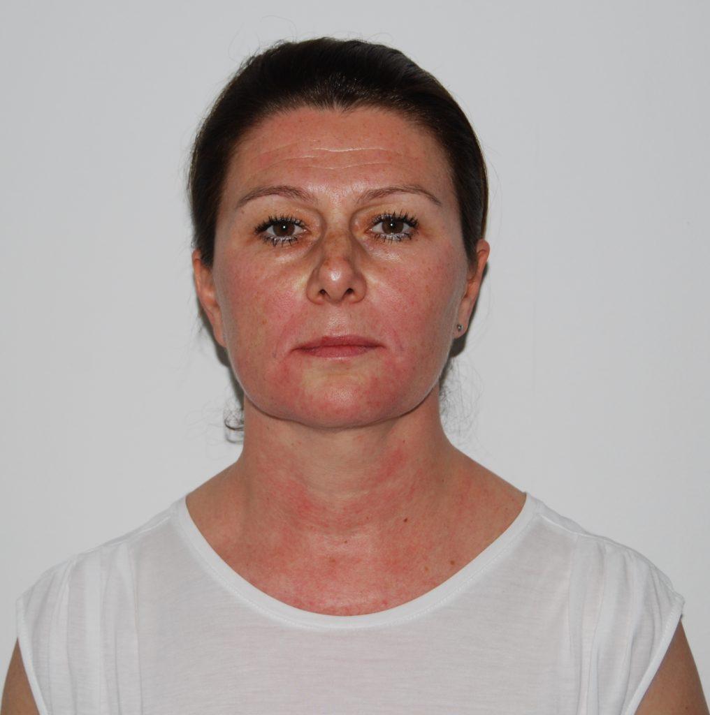 Neposredno nakon tretmana botoxom i filerima