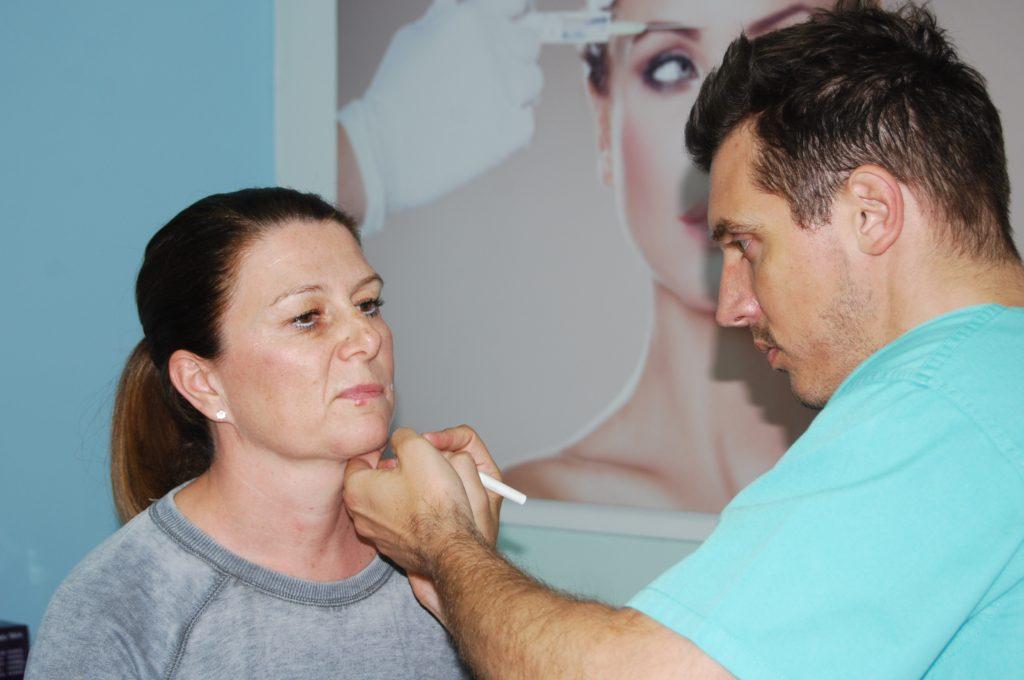 Označavanje lica prije tretmana Silhouette Soft koncima