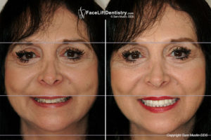 dental-facelift