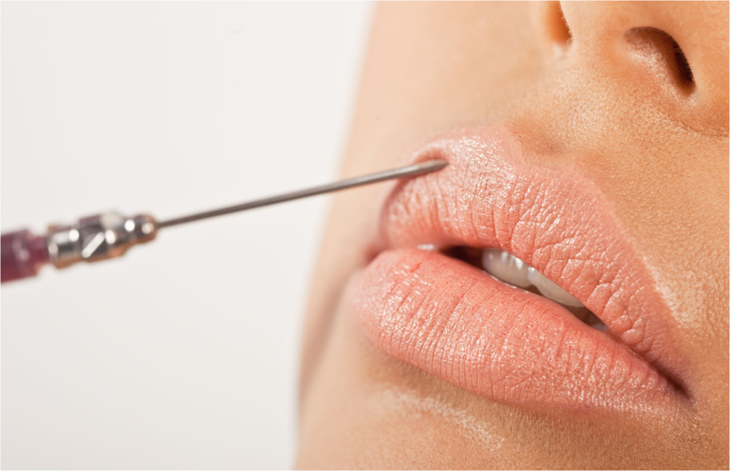 fillers needle