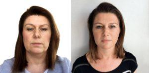 Prije i poslije makeovera