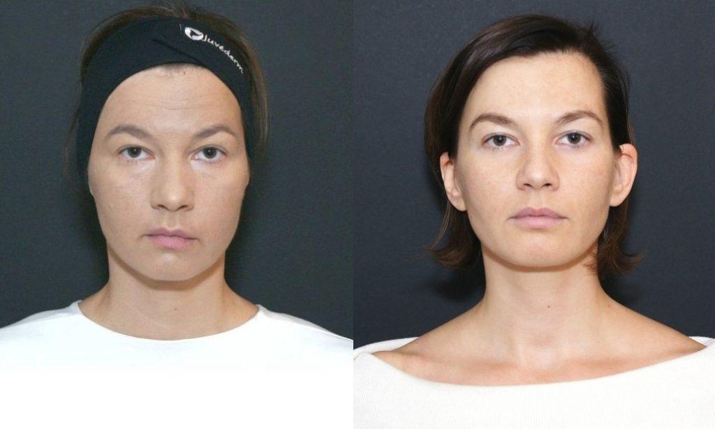 Prije tretmana i poslije 3 tjedna
