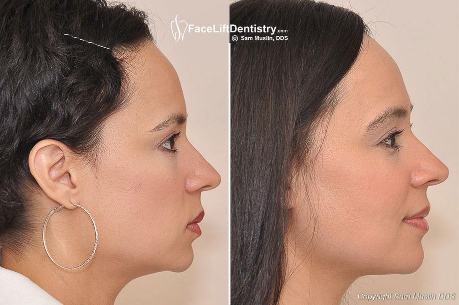 Iz arhive dr. S. Muslina. Izvor: faceliftdentistry.com