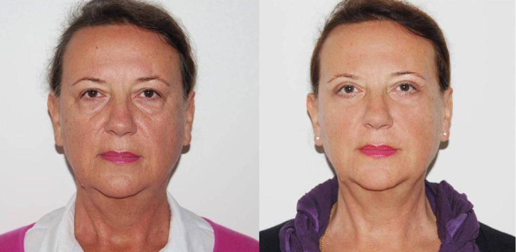 Prije zahvata i poslije zahvata (nakon 6 tjedana)
