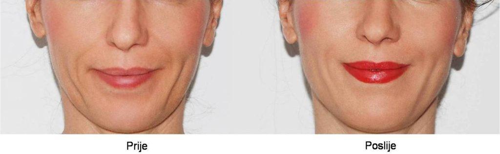 prije i poslije 2