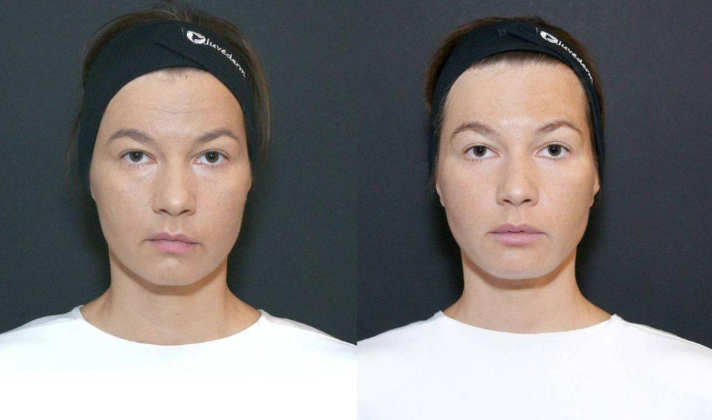 Prije tretmana i neposredno poslije tretmana