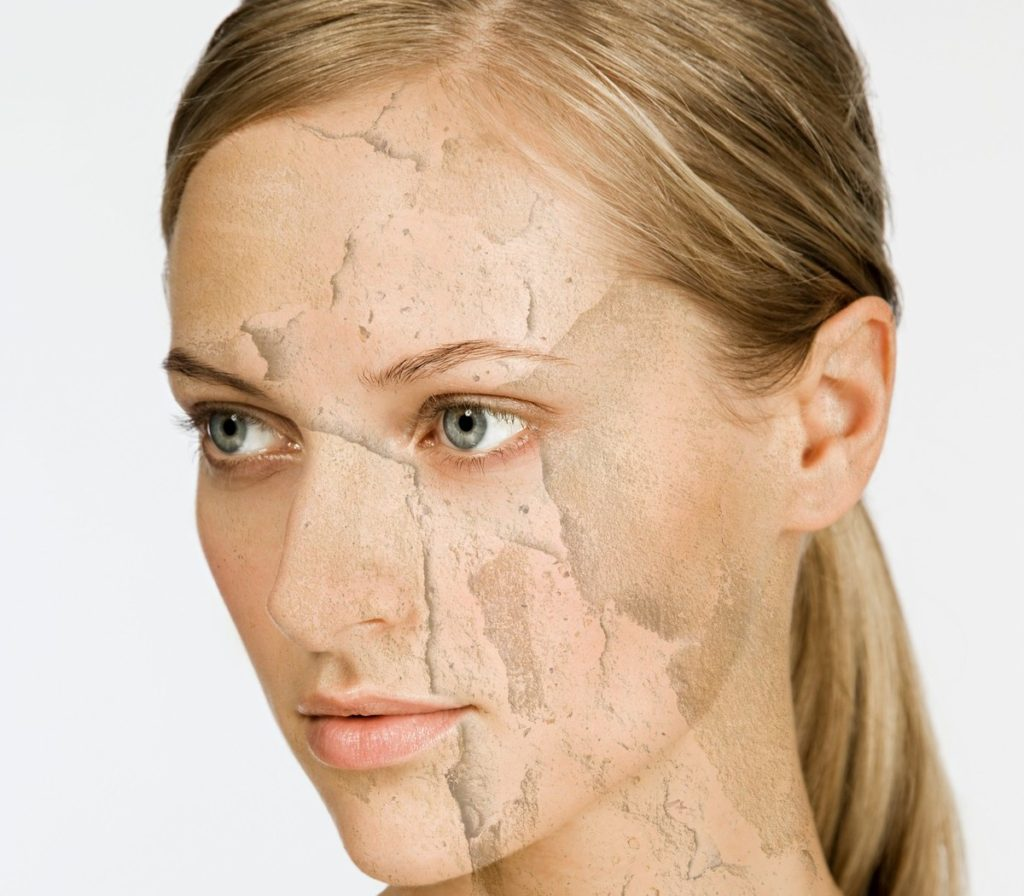 Woman with cracked and peeling skin, Image: 29544052, License: Royalty-free, Restrictions: Specifically, you may not use the Images in ways or contexts that might reasonably be construed as pornographic, defamatory, libellous or otherwise unlawful; Specifically, you may not use images depicting any model in any unduly controversial or unflattering context, unless accompanied with a statement indicating that the person is a model and the images are being used for illustrative purposes only., Model Release: yes, Credit line: Profimedia, ImageSource