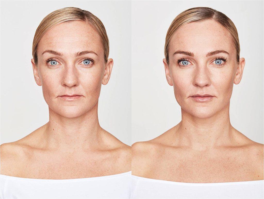 Prije i poslije. Tretman botoxom (Azzalure) i filerima (Kysse, Lyft, Defyne)