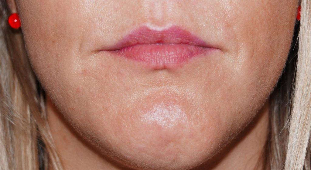 Zašto žene imaju velike usne